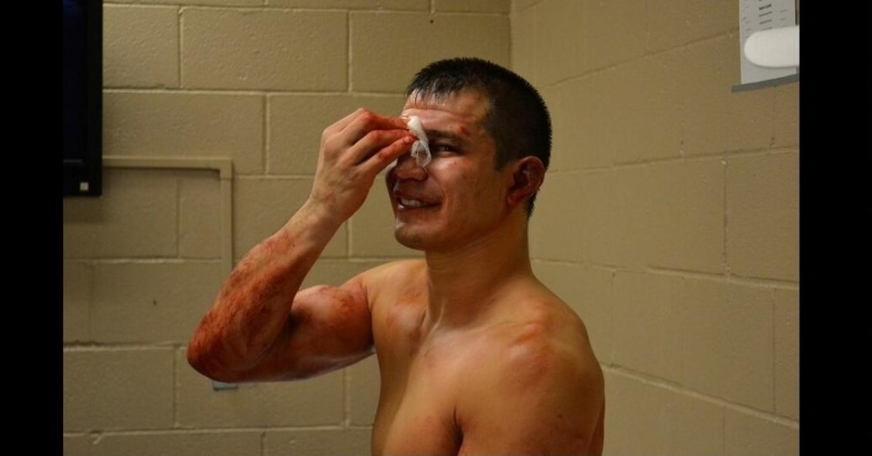 28.dez.2013 - Bobby Voelker faz compressa no nariz após perder para o brasileiro William Patolino na segunda luta do card preliminar do UFC 168