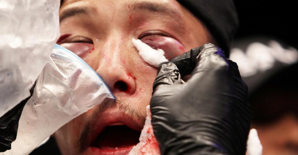 01.mar.2014 - Com o rosto bem machucado, Yui Chul Nam é atendido pelos médicos do UFC após luta contra Kazuki Tokudome