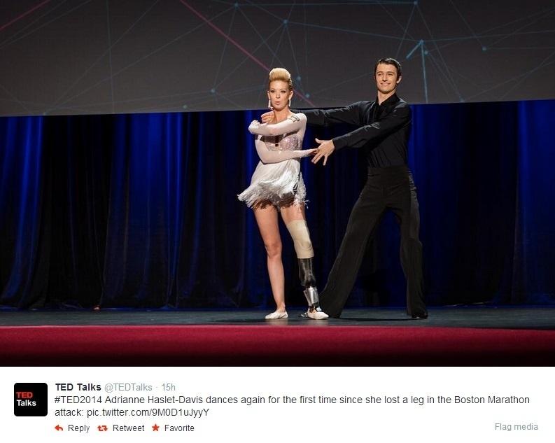 Sobrevivente do atentado de Boston ganha perna 'biônica' e volta a dançar