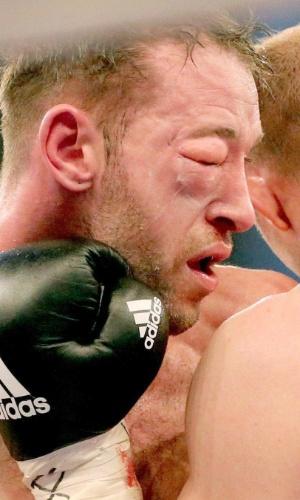 Enzo Maccarinelli com o olho bastante inchado na luta contra Juergen Braehmer