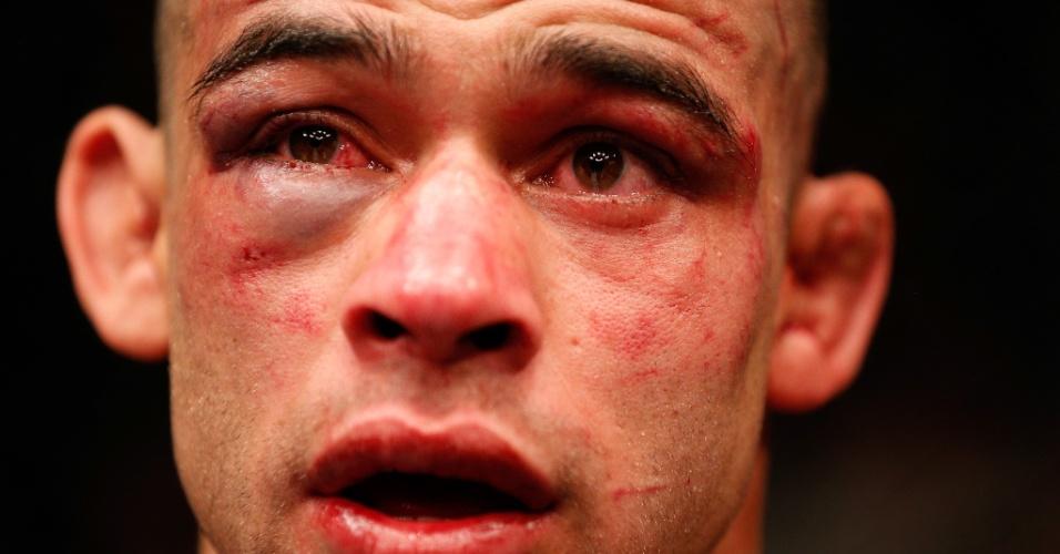 Renan Barão exibe rosto machucado pelos golpes de Dillashaw após perder pela primeira vez em 9 anos