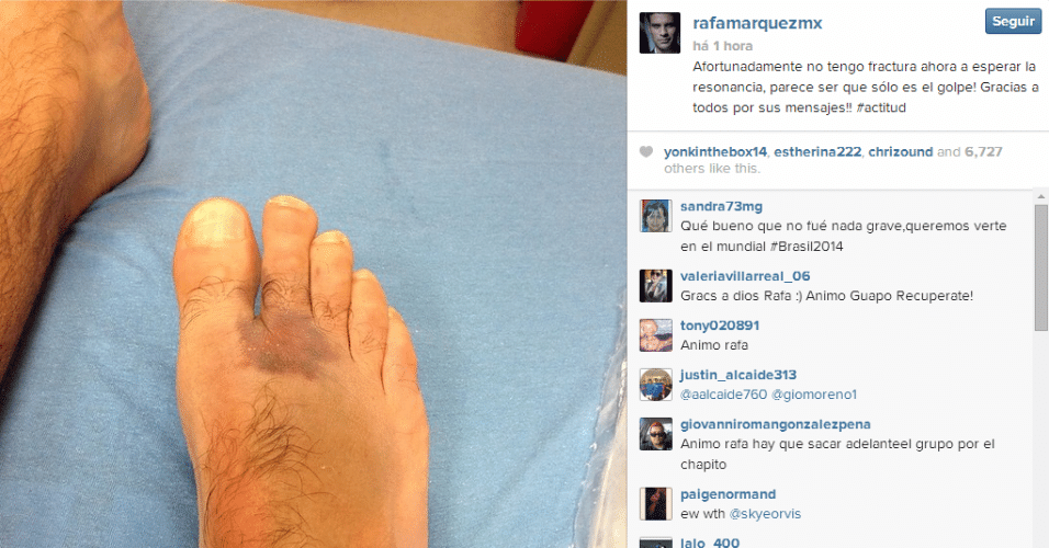 31.mai.2014 - Rafa Marquez posta no Instagram foto de sua lesão no pé; ele não fraturou o dedo e não deve perder a Copa
