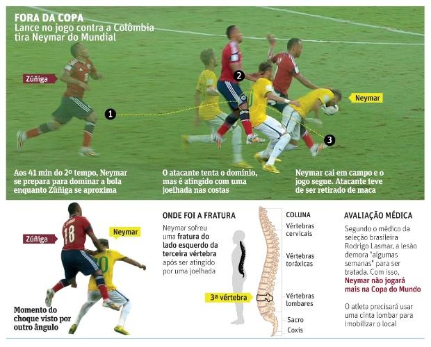 Infográfico detalha lesão sofrida por Neymar após levar joelhada de colombiano Zúñiga durante quartas de final da Copa do Mundo
