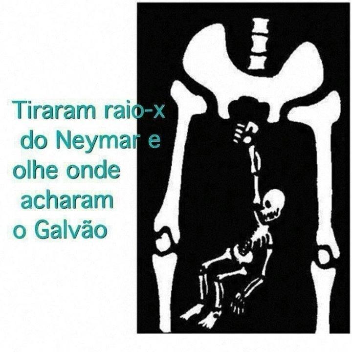 Acharam o Galvão na radiografia do Neymar