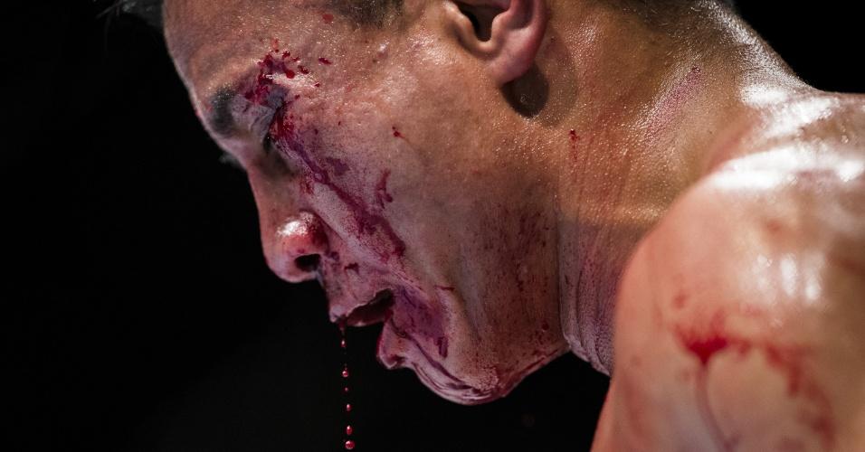 Cung Le exibe as marcas da derrota para Michael Bisping, em Macau