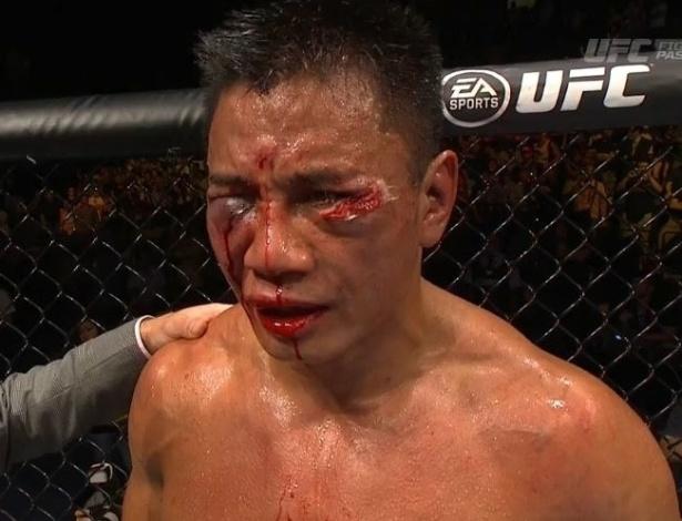 Cung Le foi castigado por Michael Bisping e ficou com o rosto inchado pelos golpes sofridos na derrota por nocaute técnico no UFC Macau