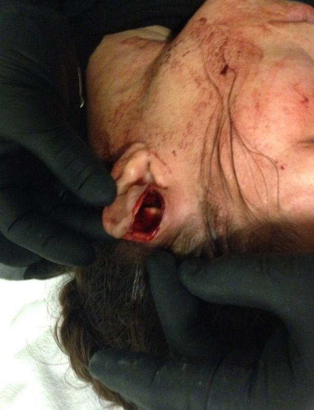 16.nov.2014 - Leslie Smith exibe foto do corte profundo que sofreu na orelha, durante a derrota para Jessica Eye, no UFC 180, realizado no México