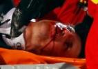 Tetracampeão olímpico sofre acidente ao saltar mais de 130 metros e desmaia - DOMINIC EBENBICHLER/REUTERS
