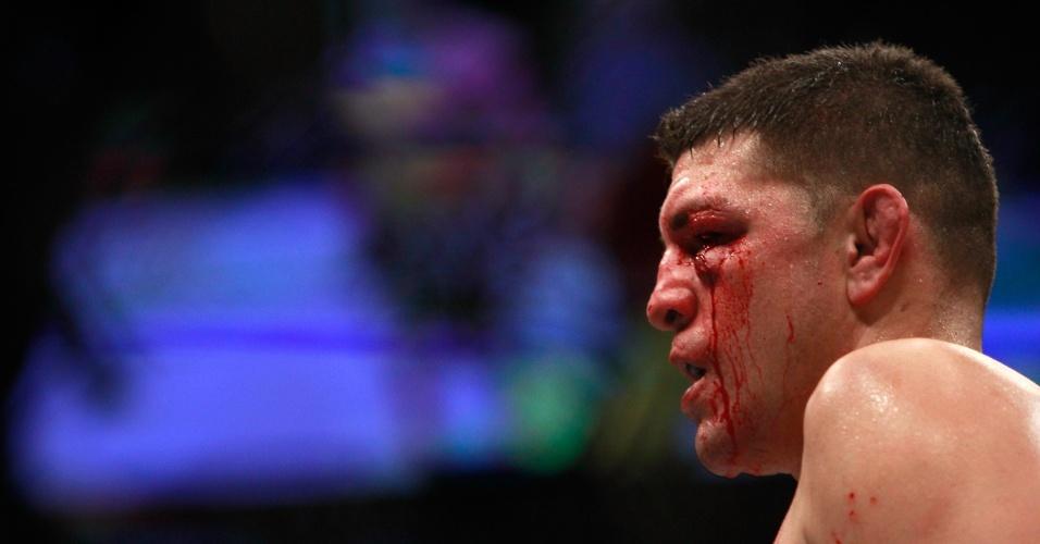 Nick Diaz deixou o octógono com o rosto castigado após perder para Anderson Silva na luta principal do UFC 183 em Las Vegas