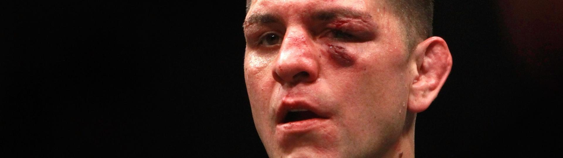 Nick Diaz foi derrotado por Anderson Silva na luta principal do UFC 183 e deixou o octógono com o rosto machucado