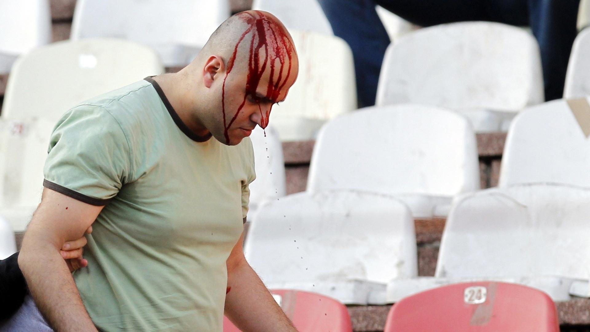 Detalhe de torcedor com a cabeça sangrando após briga de torcida no clássico entre Estrela Vermelha e Partizan, em Belgrado, na Sérvia