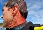 Carlos Burle perde a consciência e corta a cabeça após acidente no Rio - Reprodução/Instagram