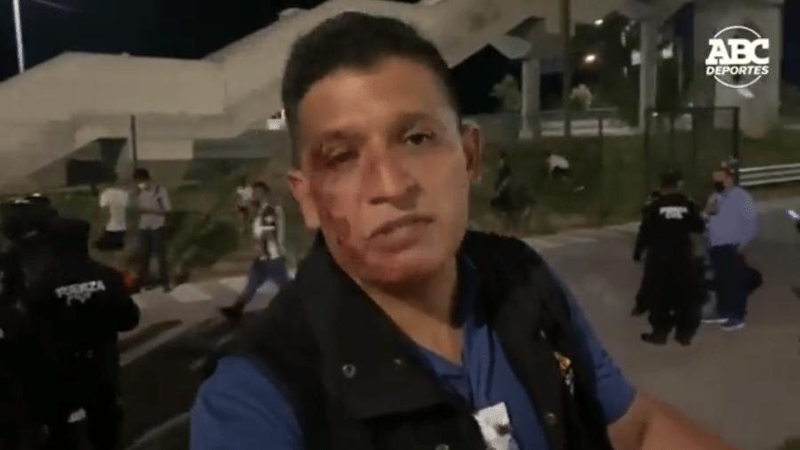 Repórter Alejandro Aguirre, da emissora Televisa, foi agredido por torcedores do Tigres (MEX) - Reprodução/Twitter @abcdeportesmx