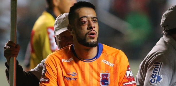 Léo, após o lance que o afastou um mês e meio do futebol: do Paraná para o Atlético