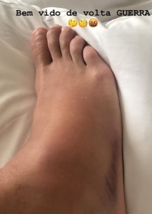 tornozelo esquerdo inchado à noite