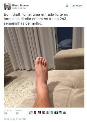Elano mostrou o tornozelo nas redes sociais - Reprodução/Twitter