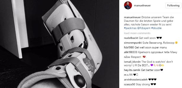 Neuer aparece com uma bota imobilizadora nas redes sociais