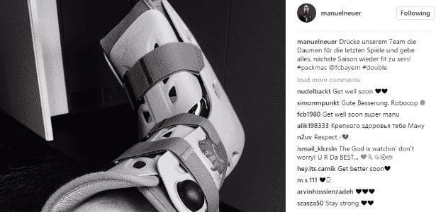 Neuer aparece com uma bota imobilizadora nas redes sociais - Reprodução/Instagram
