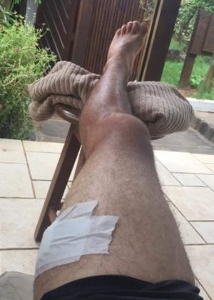 A perna de Mineirinho após acidente - Reprodução/Twitter
