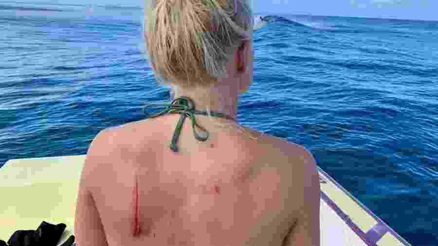Tatiana Weston-Webb se fere em bancada de corais antes de etapa do Mundial - Reprodução/Instagram