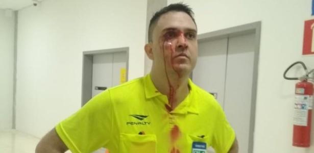 Tiago Nascimento dos Santos foi agredido por integrantes do Santa Cruz