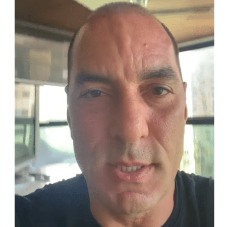 Edmundo raspou a cabeça para passar por um procedimento de implante capilar - Reprodução/Instagram