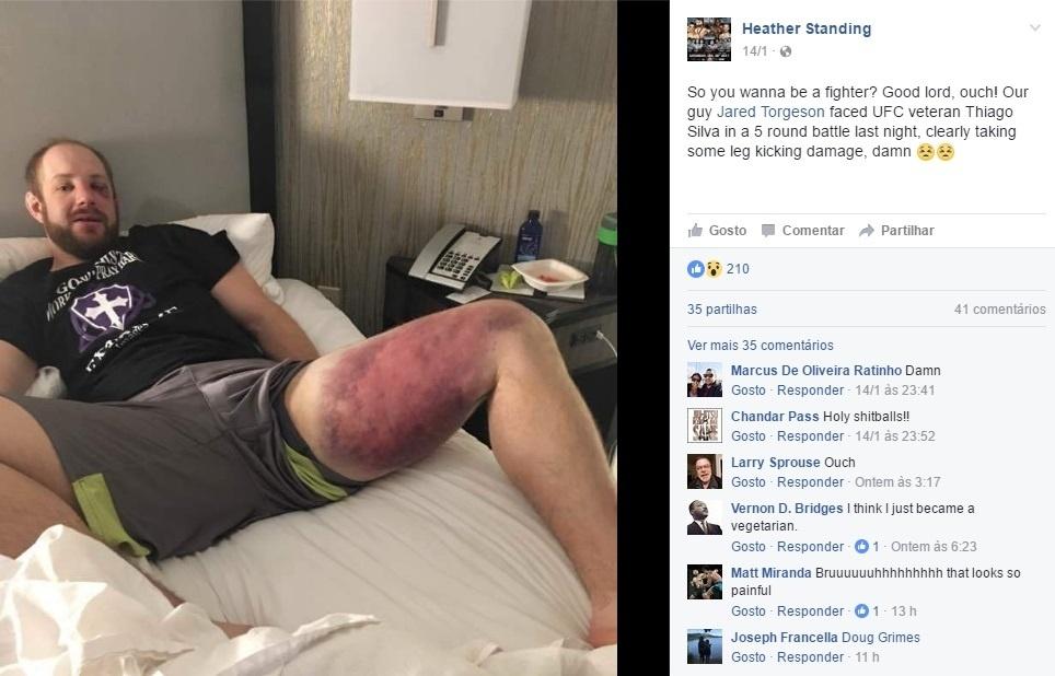 Jared Torgeson mostra hematomas depois de ter lutado contra o brasileiro Thiago Silva