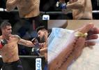 Weidman publica foto de cicatriz após cirurgia na mão esquerda