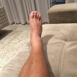 Inchado um tornozelo como é