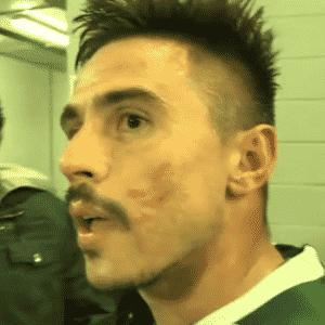 Willian saiu com marcas no rosto após confusão contra jogadores do Peñarol - Reprodução/FOX Sports