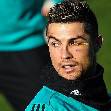 Cristiano Ronaldo levou pancada durante jogo do Real Madrid no último fim de semana - Oscar del Pozo/AFP
