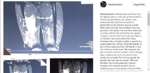 Kieza publicou o exame de imagem da coxa realizado após o Ba-Vi
