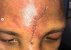 Após perder luta, pugilista Badou Jack recebe 25 pontos na testa - Reprodução/Instagram