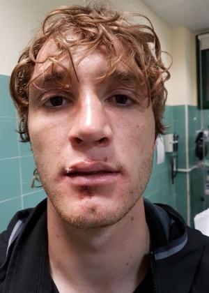 Mario quebrou o nariz e não terá condições de estar na Copa das Confederações