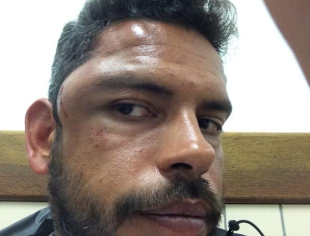 Daniel Guerra foi agredido por jogadores e membros da comissão técnica da LDU