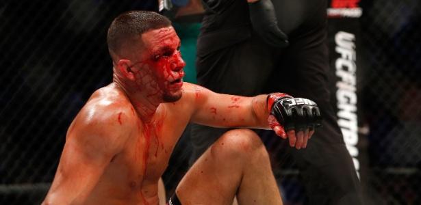 Nate Diaz terminou a luta contra McGregor com o rosto bastante machucado - Steve Marcus/Getty Images