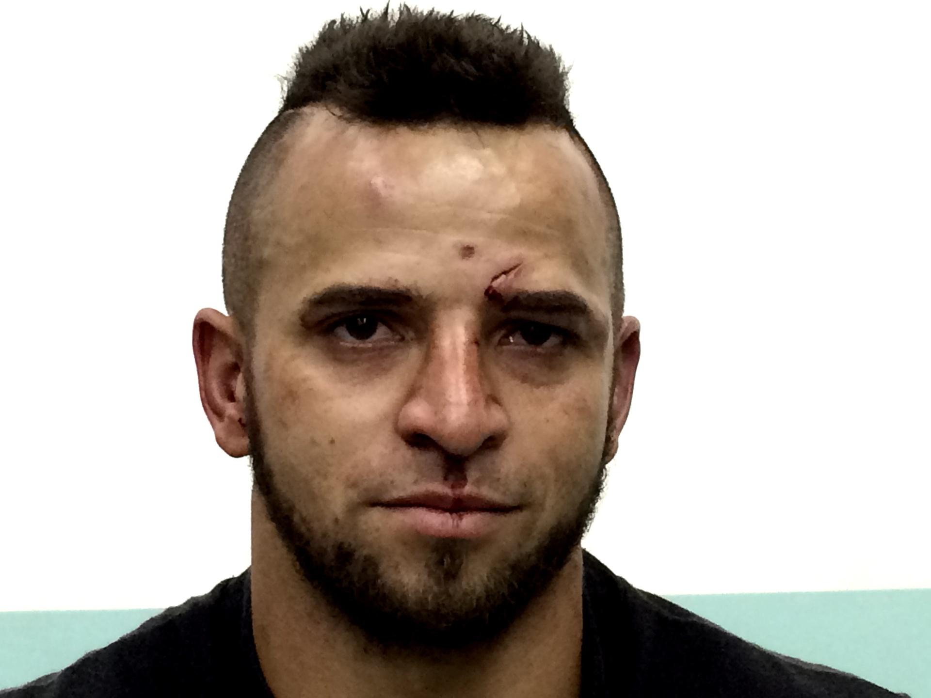 Thiago Tubarão recebeu cotoveladas no supercílio e perdeu luta para Anderson Berinja em torneio de MMA