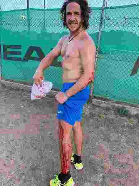 Carles Puyol mostra machucados após partida de pádel - Reprodução/Instagram