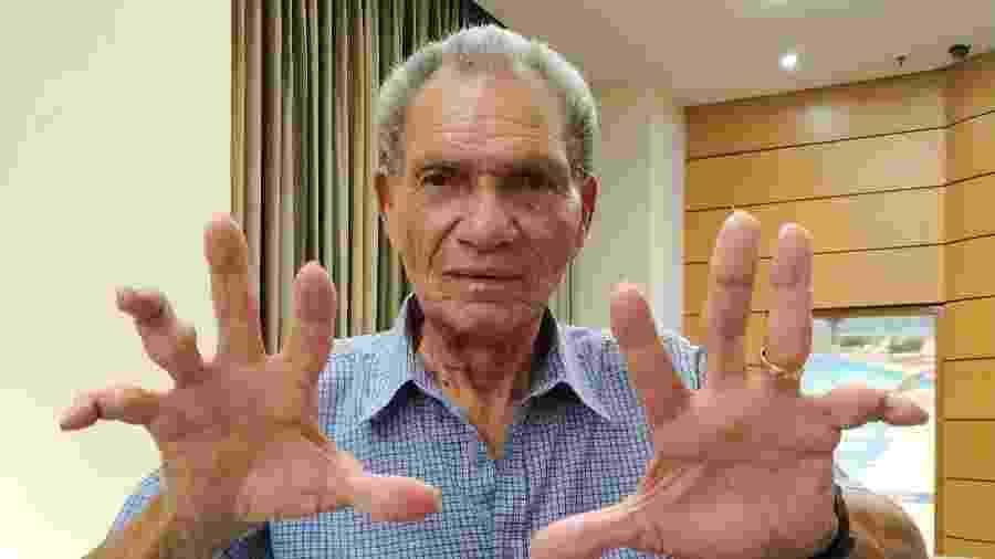 Manga, ex-goleiro de Botafogo e Inter, mostra dedos quebrados ao longo da carreira - Vanderlei Lima/UOL
