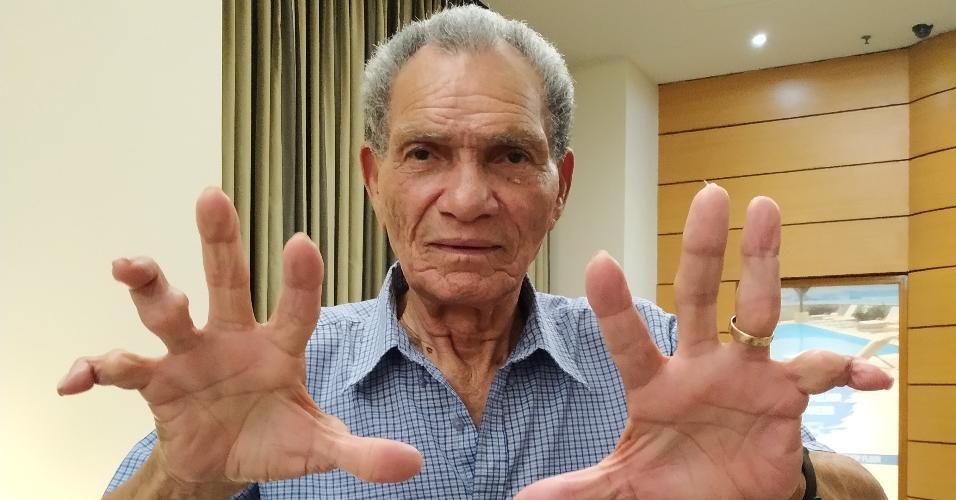 Manga, ex-goleiro de Botafogo e Internacional, mostra os dedos quebrados ao longo da carreira