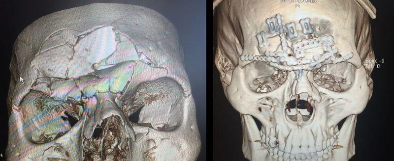 Crânio de Cyborg foi reconstruído