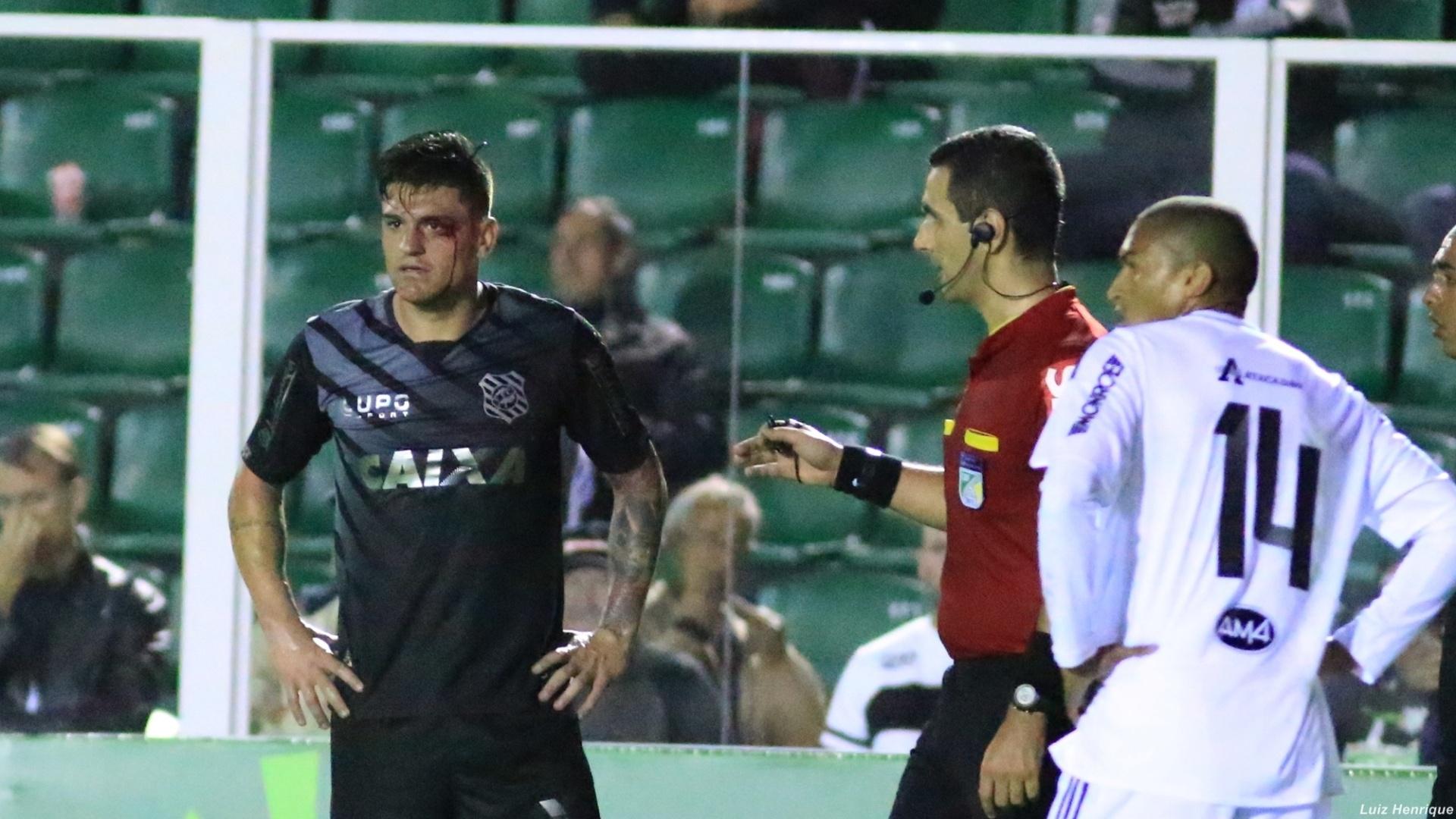 Jocinei fica sangrando após choque com companheiro de Figueirense, na partida contra a Ponte