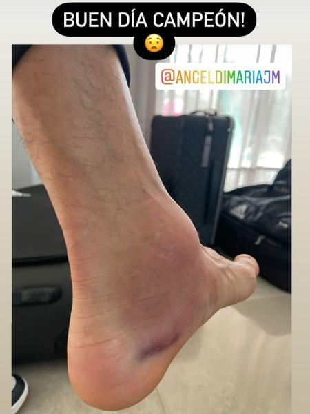 Esposa mostra tornozelo inchado de Di Maria após conquista da Copa América - Reprodução/Instagram