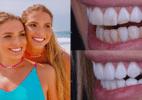 Bia e Branca trocam lentes dentárias após cáries: 'Podíamos perder o dente'