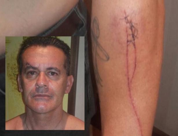 José Guerrero mostra ferimentos sofridos após espancamento em Granada