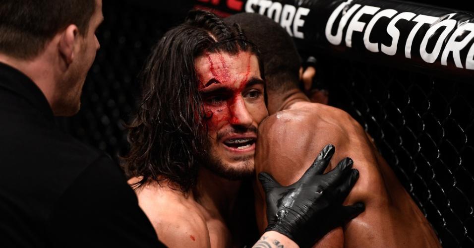 O brasileiro Thiago Marreta deixou o canadense Elias Theodorou, então invicto, com esse corte e venceu sua luta no UFC