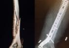 Lindsey Vonn fratura braço após sofrer queda em treinamento nos EUA - @lindseyvonn/Instagram