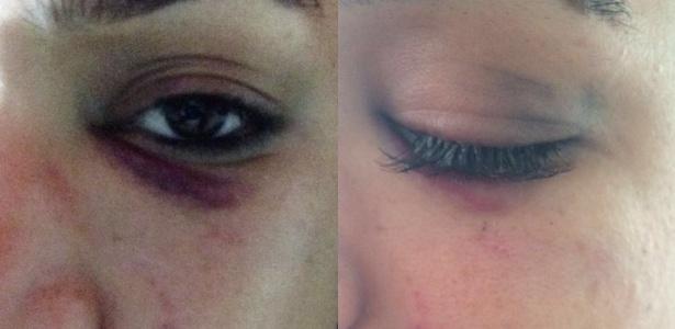 Detalhe do olho roxo de vítima da agressão em Belém - Reprodução/Facebook
