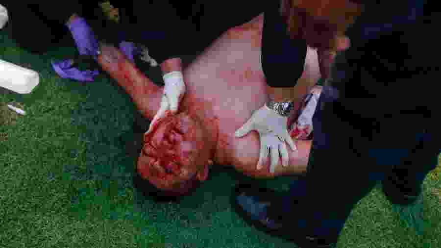 Torcedor do San Luis é ferido em confronto contra torcedores do Querétaro - Cesar Gomez/Jam Media/Getty Images