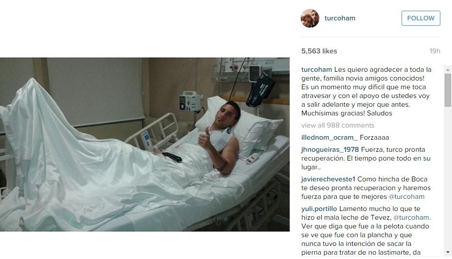 Jogador argentino posta foto após fratura em lance com Carlitos Tevez